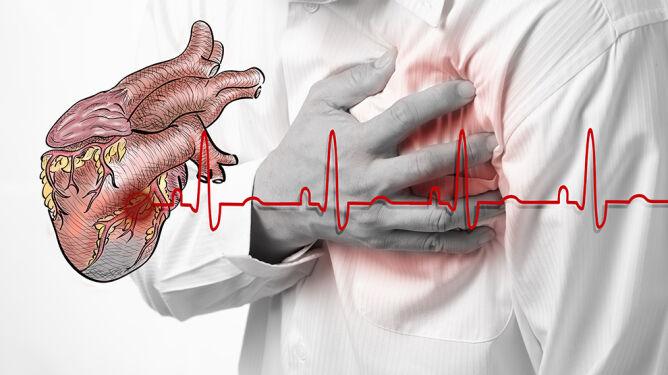 Grypa zwiększa ryzyko zawału serca. Aż sześciokrotnie
